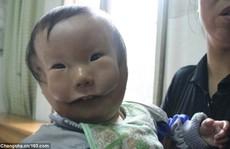 Cậu bé như có 2 gương mặt vì căn bệnh lạ
