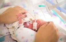 Bị sinh non trước 4 tháng, bé gái nhỏ như lon Coca
