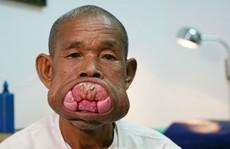 Cụ ông Campuchia sau ca phẫu thuật bộ nướu răng khổng lồ