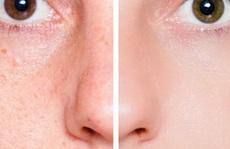 Sạch mụn sáng da đón Tết nhờ 6 bước xông mặt tại nhà