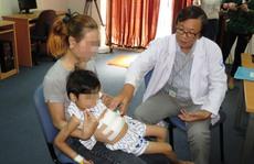 Phẫu thuật cứu 4 bé mắc bệnh Rapunzel – công chúa tóc mây