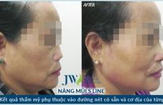 9 lần phẫu thuật làm đẹp, người phụ nữ lệch mặt, vẹo mũi