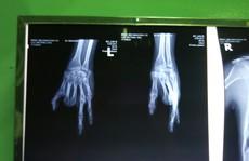 'Biến' ngón chân thành ngón tay cho cô gái gặp nạn