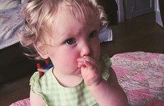 Cô bé mắc hội chứng nghiện rứt tóc của mình