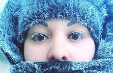 Cuộc sống ở nơi - 62 độ C