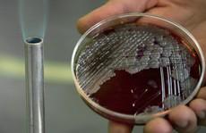 Phát hiện kháng thể bệnh than trong máu binh sĩ đào tẩu Triều Tiên