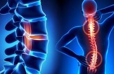 Bệnh cơ xương khớp: Đừng đợi đến khi quá muộn