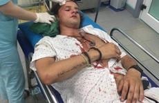 Điều tra vụ du khách người Úc bị nhóm xe ôm Hội An đánh nhập viện