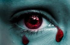 Giọt lệ máu – dấu hiệu bệnh cực hiếm và nguy hiểm