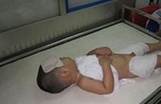Khi trẻ sốt, chỉ nên lau mát?