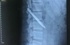 Lưỡi dao dài 13 cm nằm trong cơ thể chiến sĩ công an suốt 11 năm