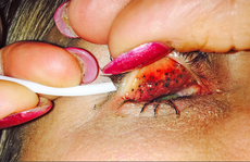 Mọc hàng chục u nhỏ trong mắt vì… lười tẩy trang