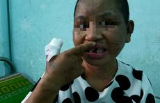 Hành trình chạy trốn khỏi 'địa ngục trần gian' của cô gái bị tra tấn dã man