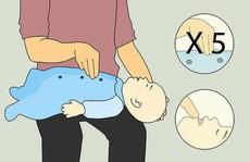 Bác sĩ chỉ cách sơ cứu khi trẻ bị hóc dị vật