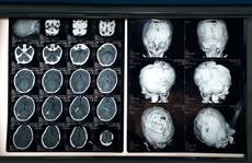 Trẻ não úng thủy được cơ hội cứu