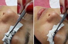 Cô gái Thái Lan suýt hỏng mắt vì nối mi bằng keo dán sắt