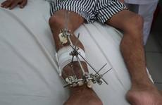 Cứu sống bệnh nhân chấn thương nặng đưa về từ Trường Sa