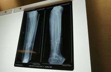 Yêu cầu 'kỳ lạ', người phụ nữ gãy chân bị nhiều bệnh viện từ chối