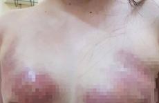 Bơm silicon nâng ngực, bị hoại tử vòng 1 nghiêm trọng