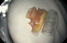 Đang uống nghệ và mật ong, 1 phụ nữ ở Phú Quốc nuốt luôn hàm răng giả
