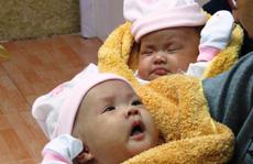 'Rụng tim' với 2 cô bé song sinh dính liền ngày xuất viện