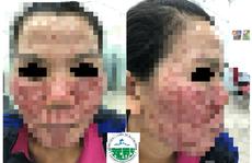 Bong tróc da mặt do tự lột da làm đẹp