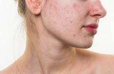 Làm thế nào để trị mụn ẩn dưới da?