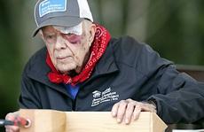 Liên tục bị ngã, cựu Tổng thống Mỹ Jimmy Carter nhập viện vì chảy máu não