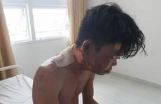 Em trai 'tố' mẹ và chị gái đổ nước sôi vào người gây bỏng nặng