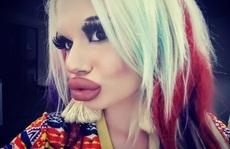 Cô gái tiêm axit 17 lần để có đôi môi ngoại cỡ