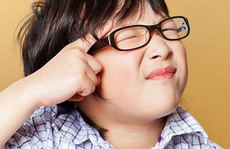Cận thị nhẹ có cần đeo kính?