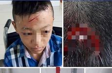 Thực hư việc trường bị 'tố' bỏ mặc học sinh bị đánh chảy máu đầu