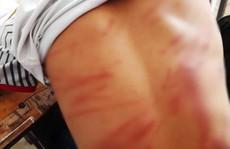 Chơi game điện tử, học sinh lớp 8 bị bố đánh bầm mình