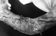 Chập chững ra đường, bé trai 19 tháng tuổi bị xe tải cán nát cánh tay