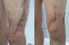 Nam sinh viên được phẫu thuật 6 lần 'cứu' chân suýt phải cắt cụt