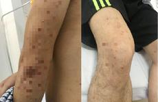 Bỗng dưng mọc mụn sần sùi chi chít trên da, nam thanh niên bất ngờ vì mắc đái tháo đường