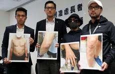 Cảnh sát Hồng Kông 'tra tấn' cụ ông trong bệnh viện