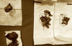 Bác sĩ ngỡ ngàng vì thiếu nữ 15 tuổi ung thư tuyến giáp di căn nhiều nơi