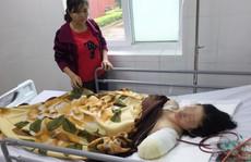 Chạy xe máy 130km đi dạy học, cô giáo bị tai nạn phải cắt lìa tay