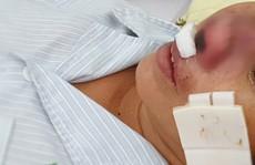 Người phụ nữ bị 'vi khuẩn lãng quên' ăn vẹt cánh mũi