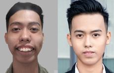 Nam sinh viên 'nạo dừa' vỡ òa hạnh phúc sau cắt hàm