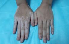 Cô gái bỗng đổi màu da tay, chân sau ngâm lá trầu không