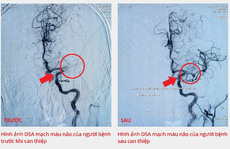 Bệnh viện Gia An 115 kịp thời cứu bệnh nhân bị tắc động mạch não