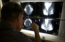 AI có thể giúp chẩn đoán ung thư vú chính xác hơn