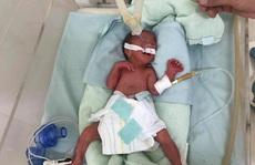 Bác sĩ xúc động kể lại hành trình vượt gần 600 km giành sự sống cho bé sinh non