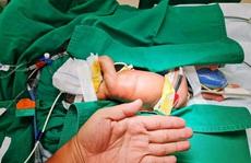 Cứu bé gái sơ sinh nặng chỉ 1,7kg bị dị tật bẩm sinh