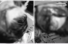 Người đàn ông bị thang máy kẹp vỡ hộp sọ