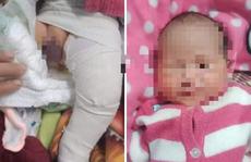 Bệnh viện Đa khoa Quảng Nam báo cáo việc bé trai gãy chân khi sinh mổ