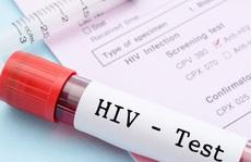 Vì sao độ tuổi được xét nghiệm HIV tự nguyện giảm xuống đủ 15 tuổi?