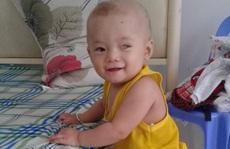 CLIP: Vợ chồng nghèo bất lực nhìn con trai 5 tuổi sắp mất luôn 2 mắt